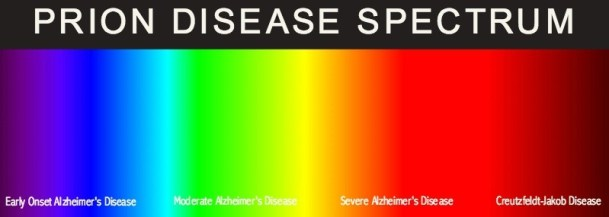 prion disease spectrum