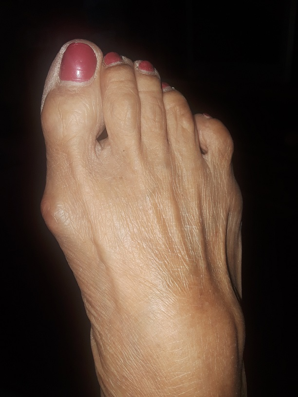Some people have crooked toes because their foot is attempting to balance itself.