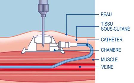 Chimiothrapie  une chambre implantable  CRTT Cancrologie