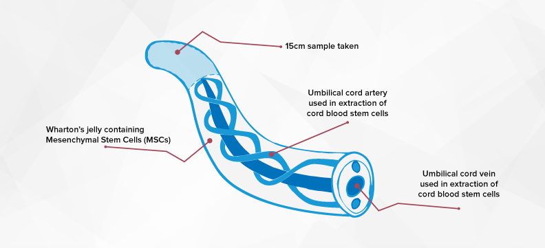 Frequently asked questions about cord blood banking