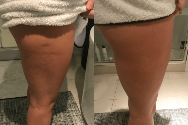 Results of toning
