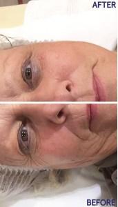 Results of facial