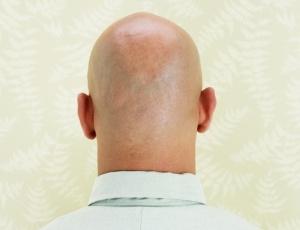 A descoberta poderá abrir o caminho para futuros tratamentos contra a  queda de cabelo