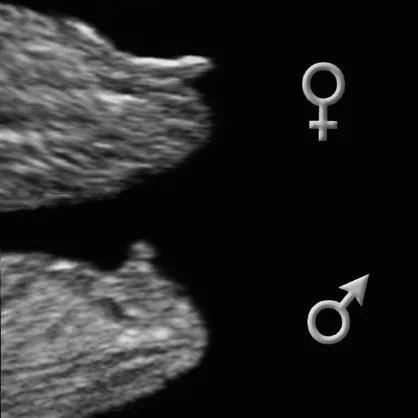 pénisz ultrahang a 20. héten