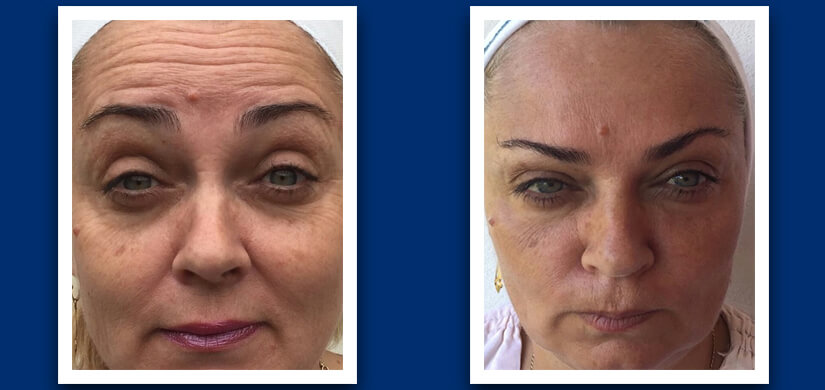 Wrinkle reduction before and after