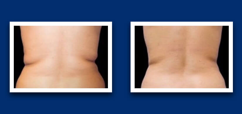 Before and after cavitation side belly difference