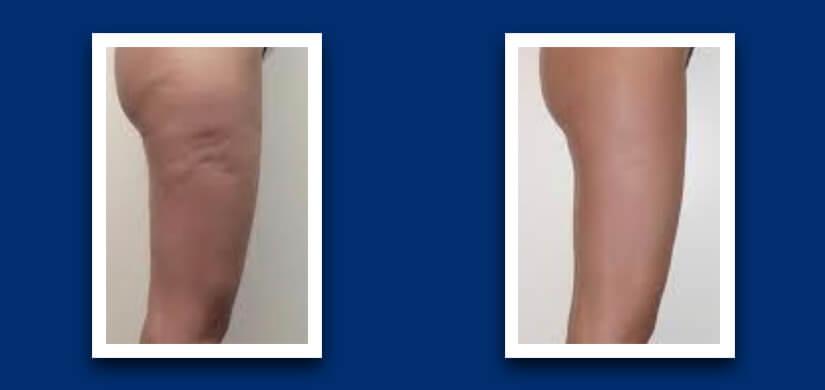 Upper leg cavitation treatment results