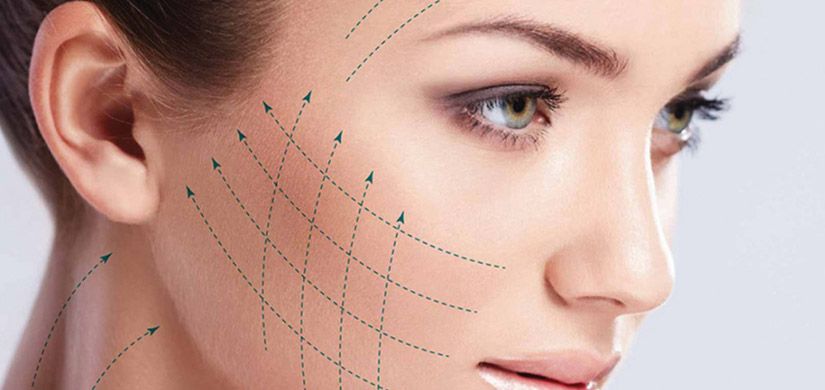 Face lifting Thread Lifting - Silhouette Soft - C&S Advance Aesthetic