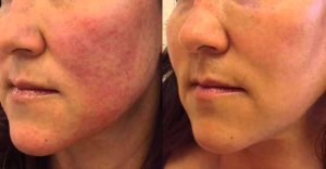 rosacea-treatment-Exeter
