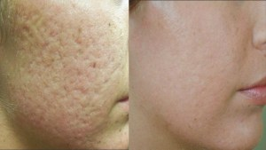 spots and pores treatment Exeter