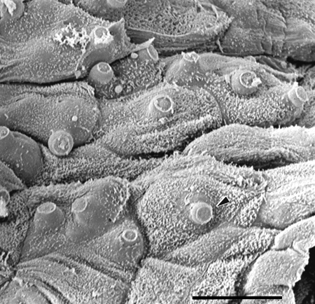 Scanning electron micrograph of infected skin with fungal discharge tubes protruding through the surface
