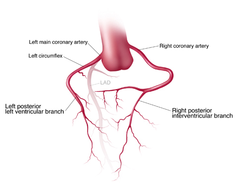 Posterolateral Coronary Artery Pictures to Pin on