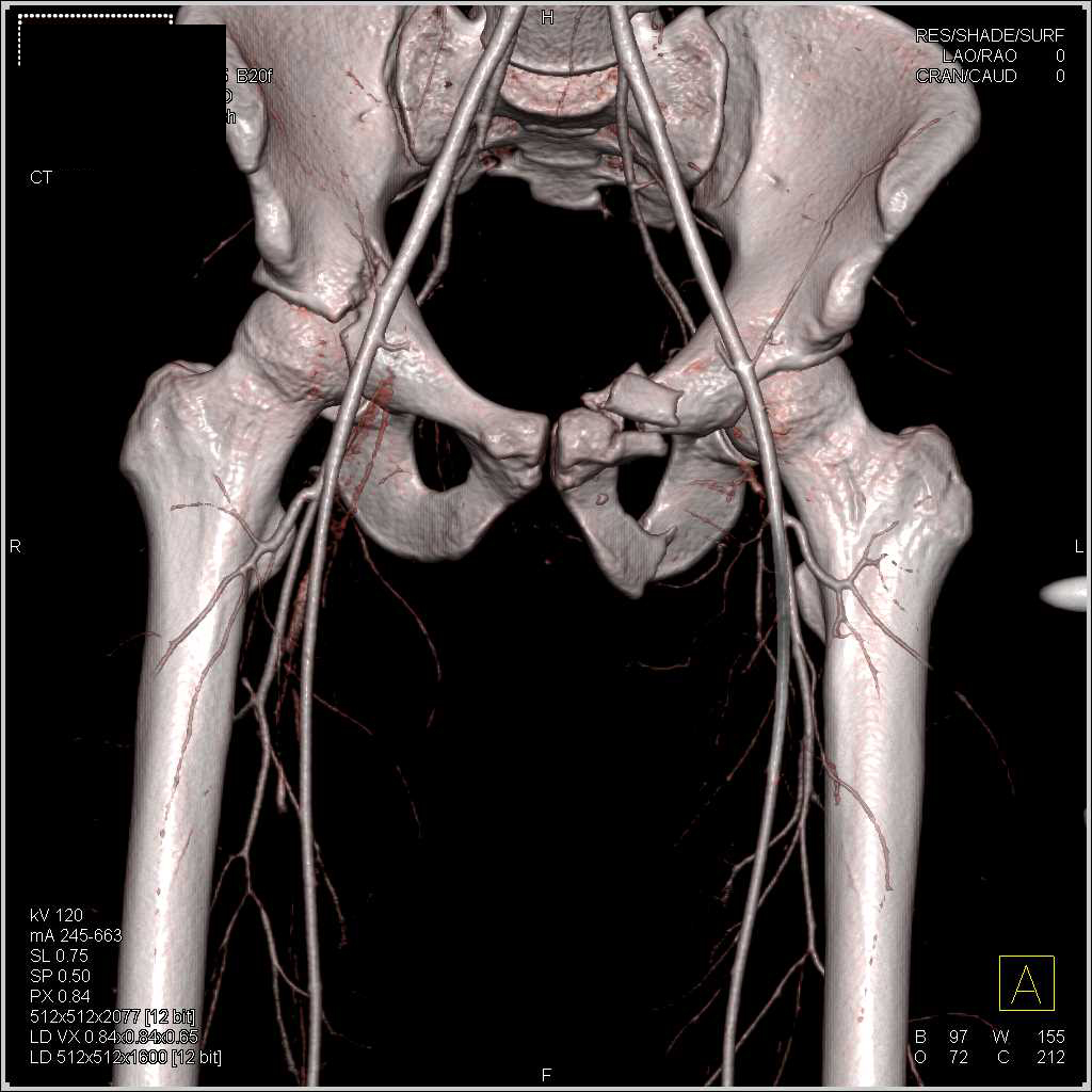 Bilateral Acetabular Fractures With Normal Cta