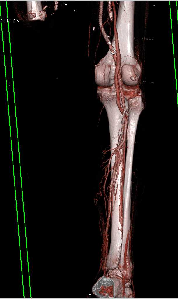 Femoral-Politeal Bypass Grafts - Vascular Case Studies ...