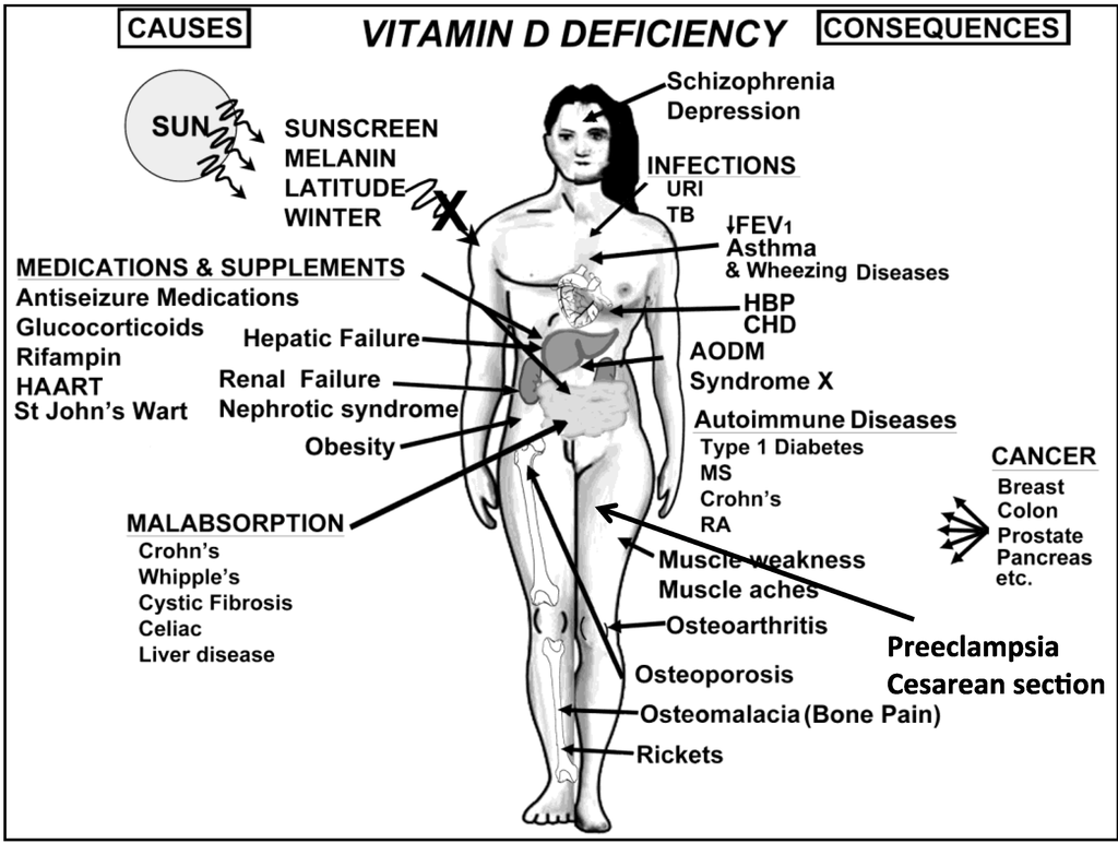 Vitamin D deficiency & toxicity: Where to draw the line