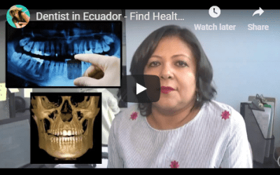 Dentist in Ecuador – Find Health in Ecuador