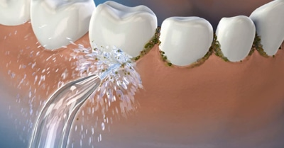 What's Better for Your Teeth? Waterpik vs. Flossing