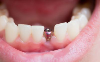 Dental Implants: Here's What You Need to Know