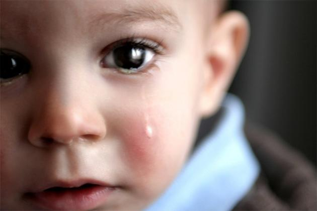 leganas amarillas en los ojos de mi bebe