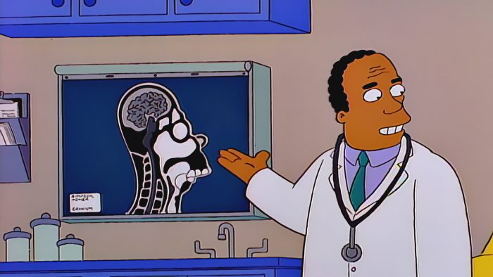 Homer's brain, as shown by Dr Hibbert