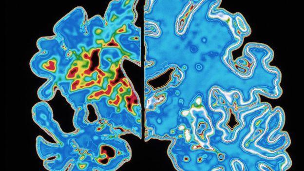 Sección de un cerebro con Alzheimer vs uno normal. Copyright: Alfred Pasieka/Science Photo Library