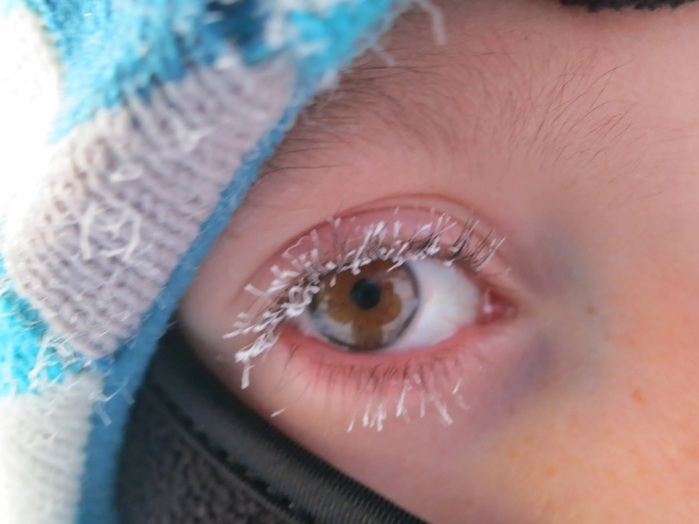 Frosted eye