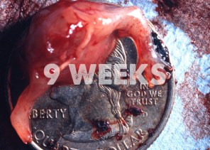 Prenatal Development 9 Weeks