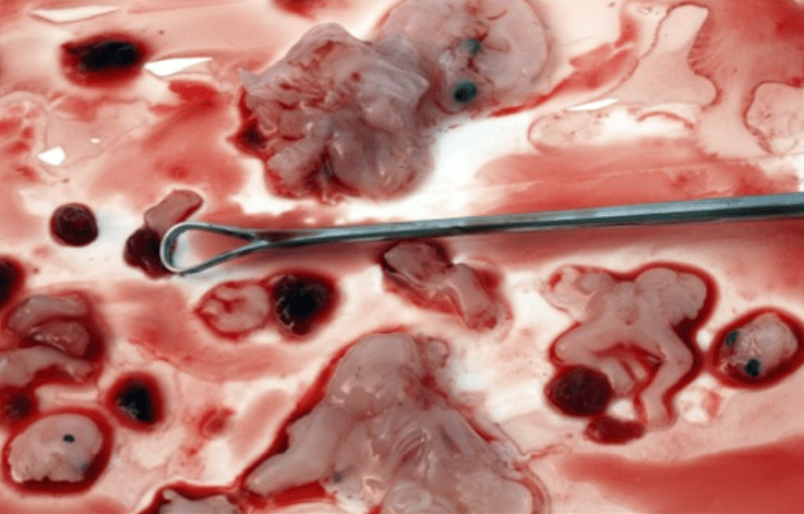 Dilation And Curettage Abortion