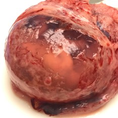 Life Inside the Amniotic Sac