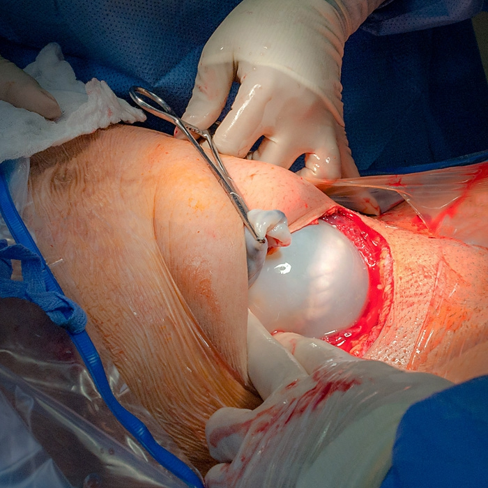 Cesarean Childbirth