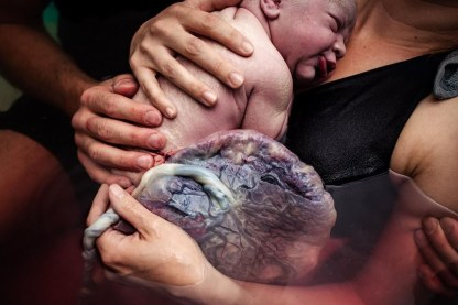 Placenta with Baby