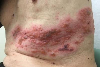 remedios caseros para herpes zoster en la espalda