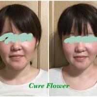 小顔矯正, small face correction