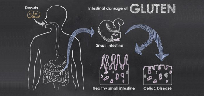 Gluten As A Model Of Food Allergic Reactions.