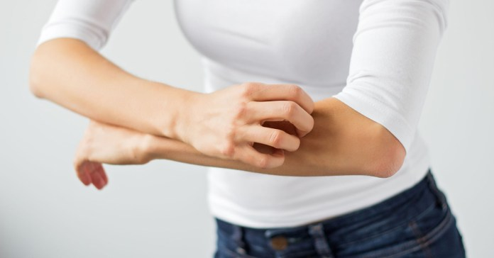 Ayurvedic Treatments, Diet, Home Remedies for Psoriasis.
