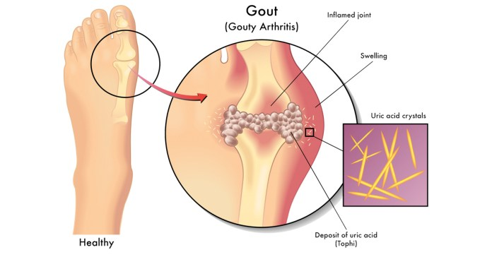 Herbal Supplements That Can Heal Gout Naturally