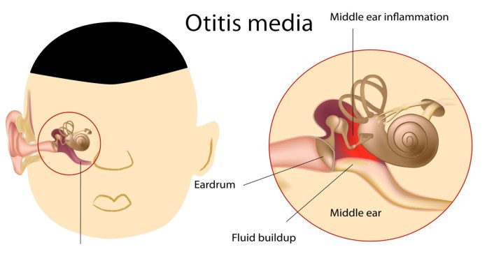 Ear Infections and Antibiotics What Parents Should Know
