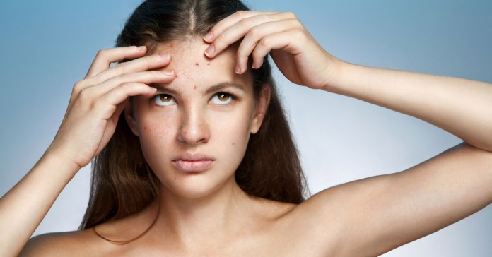10 Reasons Your Diet Can Cause & Aggravate Acne