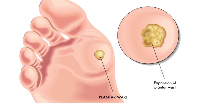 How To Remove Warts Naturally?