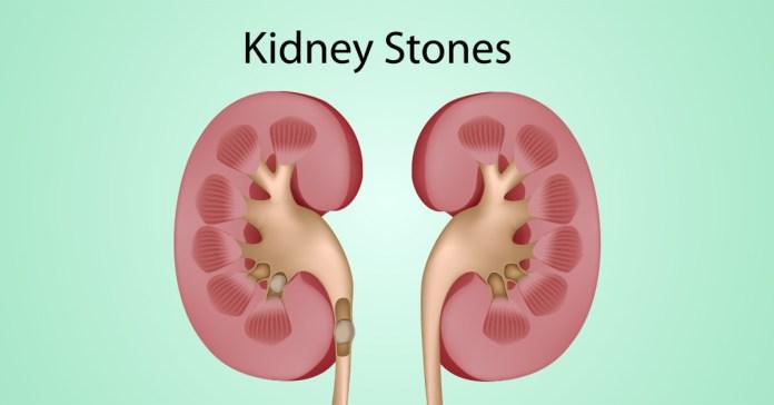 Home Remedies To Dissolve Kidney Stones