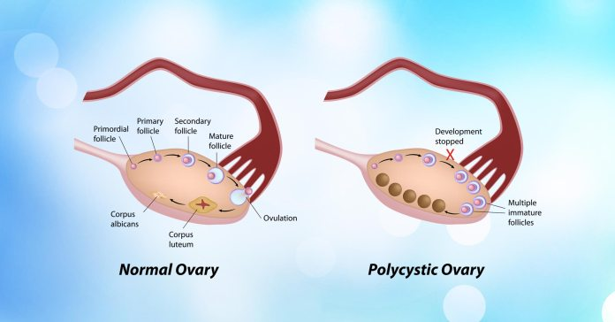 Ayurvedic Medicine for PCOS