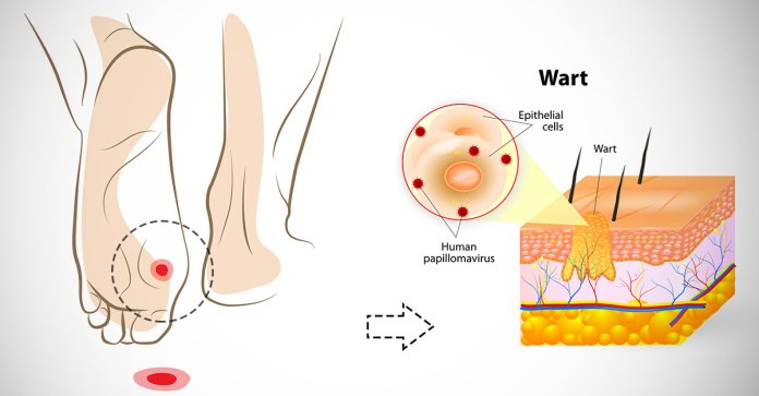 How_To_Remove_Warts_Naturally