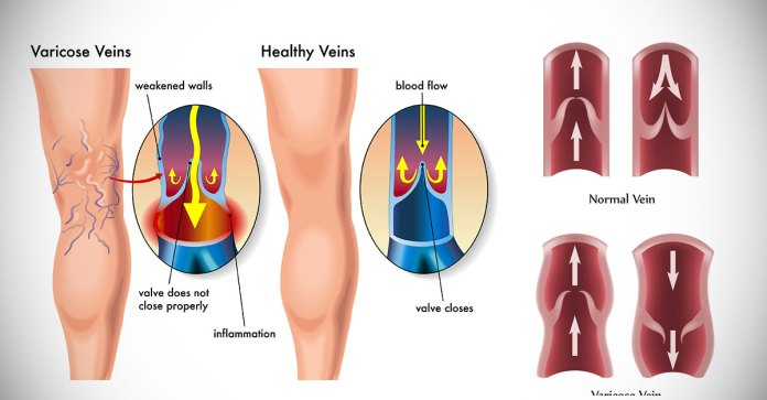 Tips_And_Remedies_For_Varicose_Veins