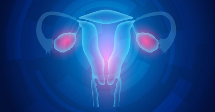 8-Early-Signs-Of-Ovarian-Cancer