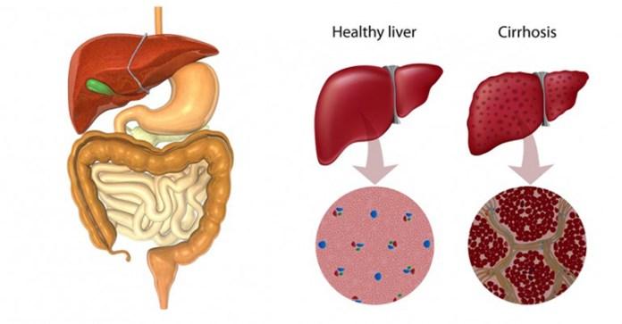 liver1_ft