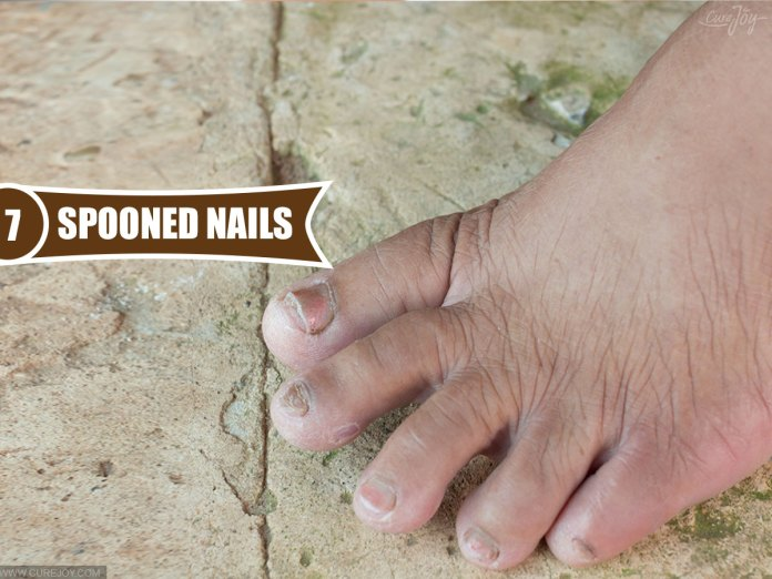 7-Spooned-Nails
