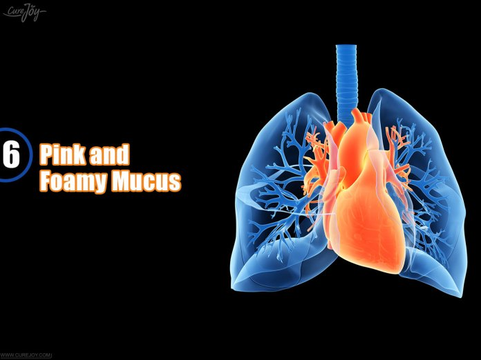 6-Pink-and-Foamy-Mucus