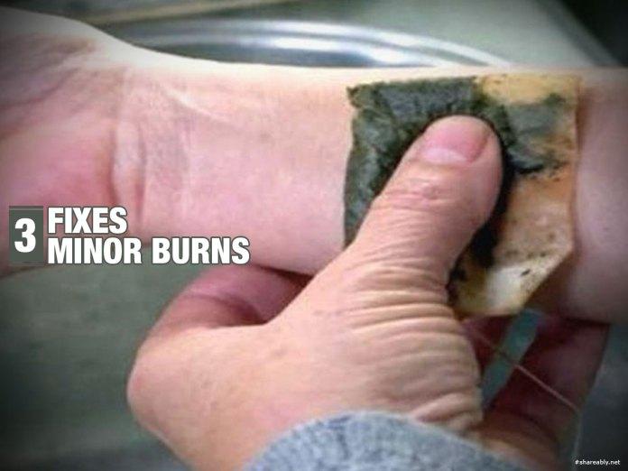 3-fixes-minor-burns