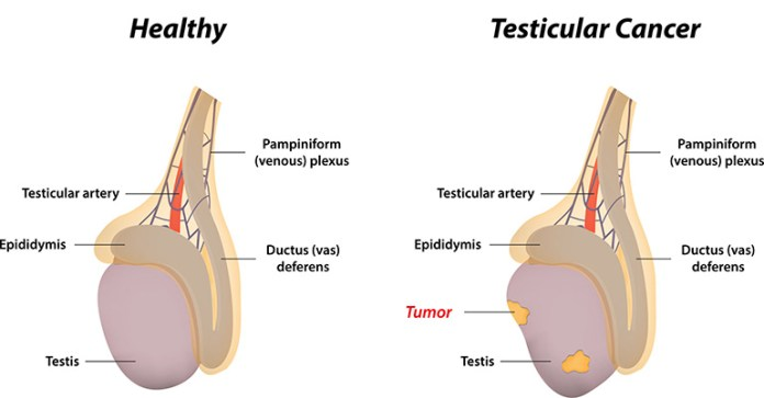 Left Testicle And Groin Pain