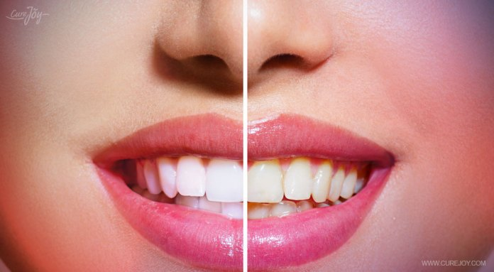 9-brightens-your-pearly-whites